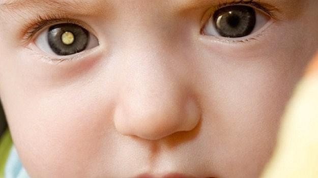 Waspada Katarak Kongenitak Jika Bayi Tidak Peka Dalam Penglihatan