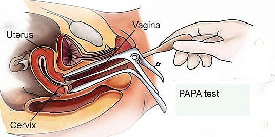 Haisl Iva Positif Tapi Pap Smear Negatif Atau Keduanya Positif