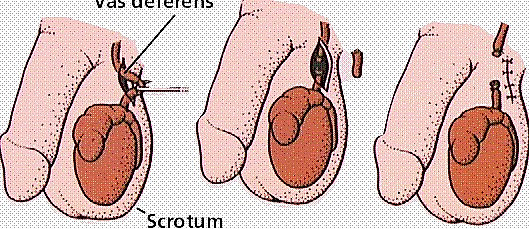 Kontrasepsi Vasektomi Pada Pria Masih Bisa Menghasilkan Sperma