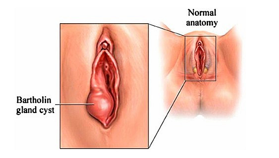 Jangan Panik! Benjolan Di Sekitar Vagina Tidak Selamanya Berbahaya