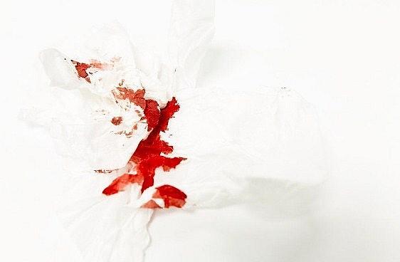 Terjadi Pengeluaran Darah Pada Saat Melakukan Hubungan Seksual ? Ini Lho Penyebabnya