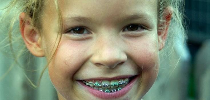 Usia Berapa Anak Boleh Menggunakan Kawat Gigi?