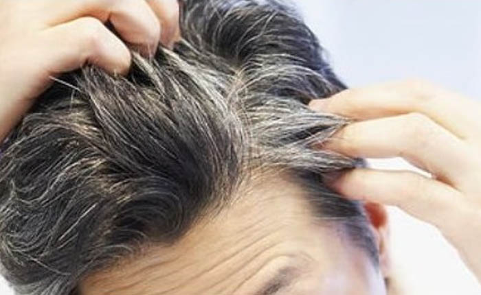 Meskipun Sudah Lanjut Usia, Rambut Beruban Bisa Dicegah Lho!