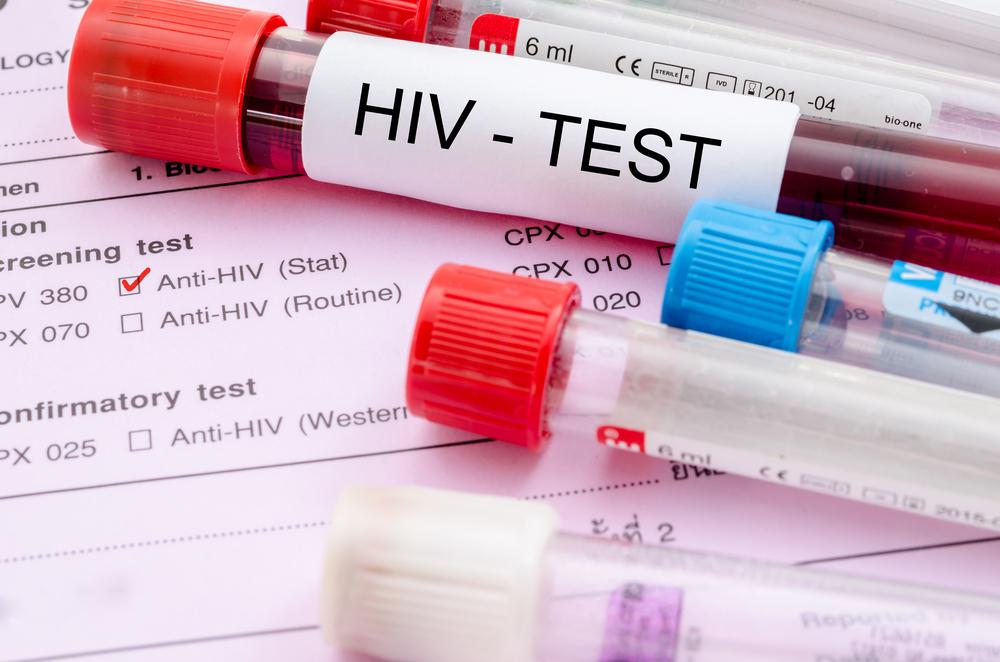 Mengapa Test HIV Diwajibkan Bagi Setiap Ibu Hamil ?