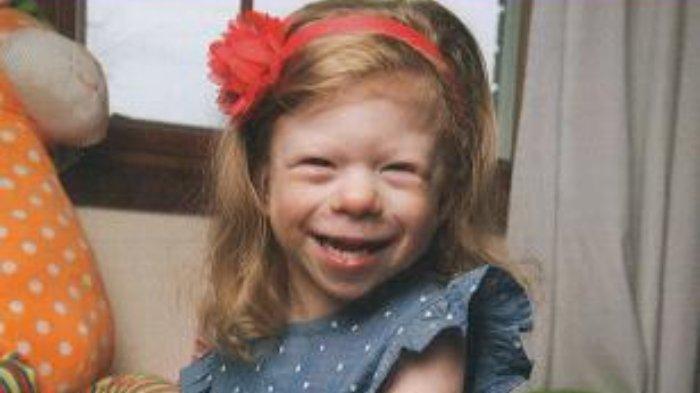 Bunda, Sudahkah Mengenali Sindrom Williams Pada Anak?