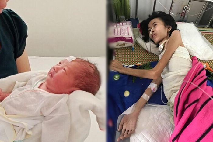 Viral, Seorang Ibu Dengan Berat Badan Hanya 19Kg Bisa Melahirkan Dengan Selamat