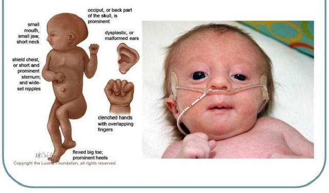 Edward Sindrom Membuat Keguguran Dan Bayi Baru Lahir Meninggal