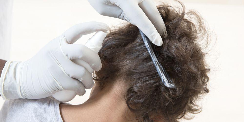Cara Mengatasi Kutu Rambut Di Kepala Si Kecil