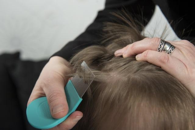 Kok Rambut Si Kecil Beruban Sih?