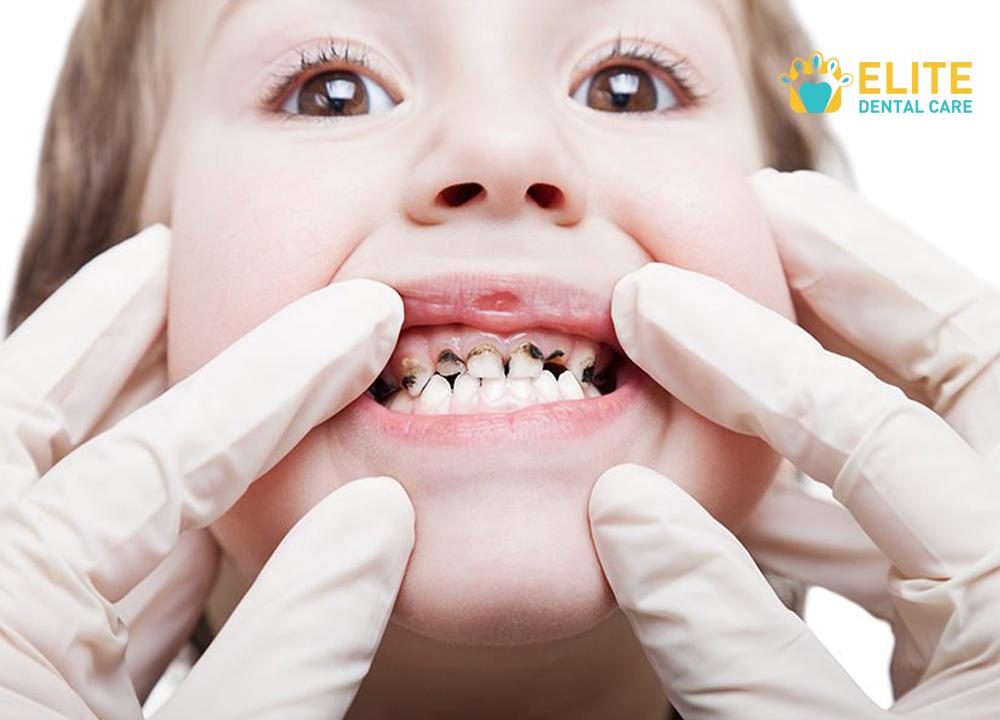 Cara Atasi Gigi Anak Yang Menghitam