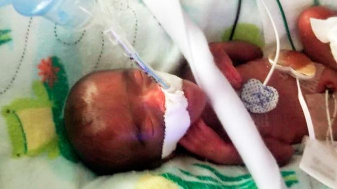 Inilah Bayi Yang Lahir Paling Kecil Sedunia
